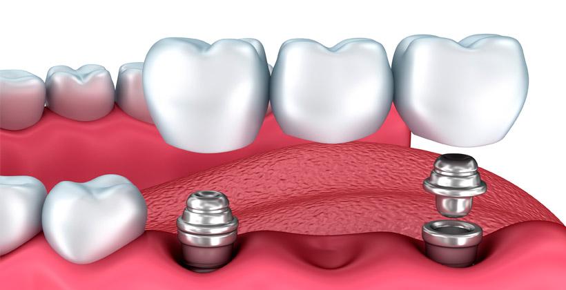 puente-implantes