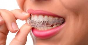 Ortodoncia invisible Invisalign