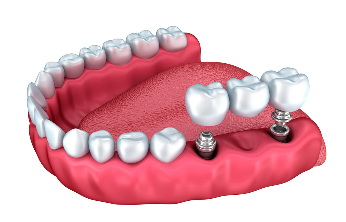 Puente implantes dentales