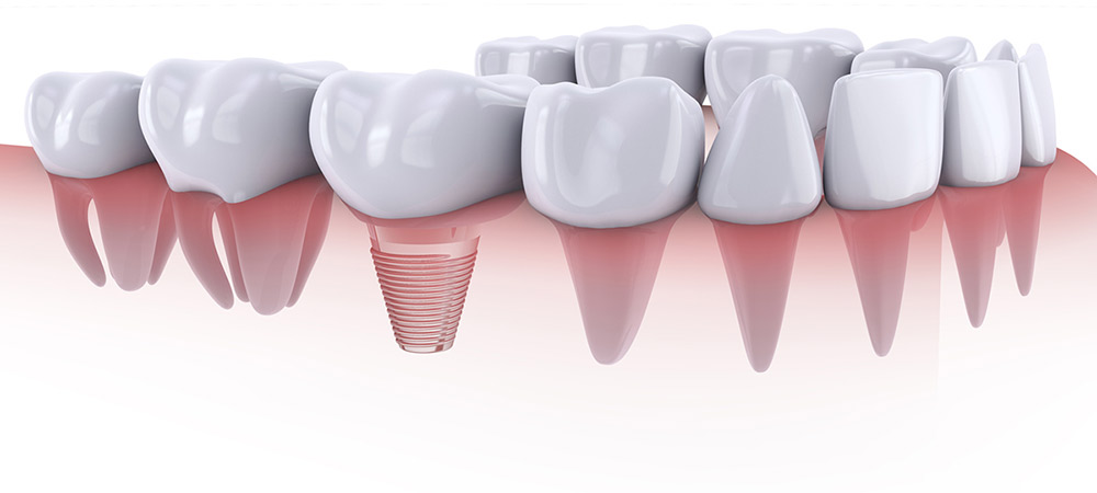 Qué son los implantes dentales