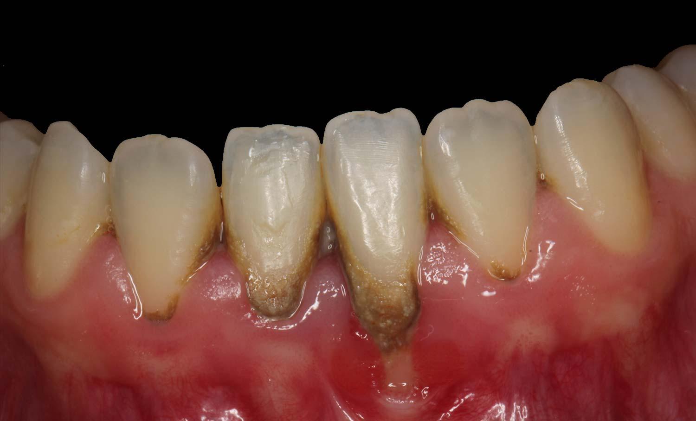 Caso periodontitis antes