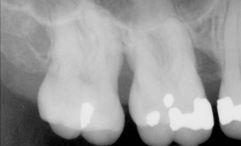 Radiografía antes