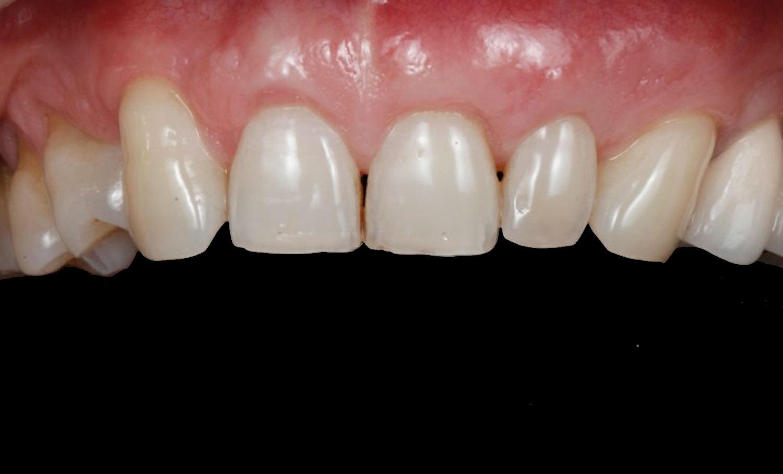Caso periodontitis después