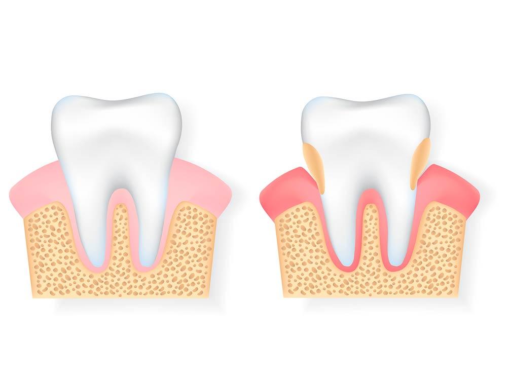 Estado de los dientes con periodontitis