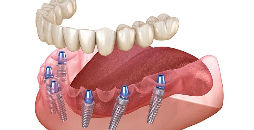 Prótesis completa sobre implantes