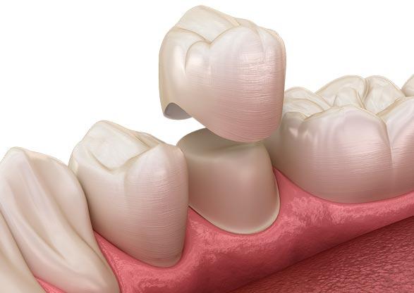 Prótesis sobre diente