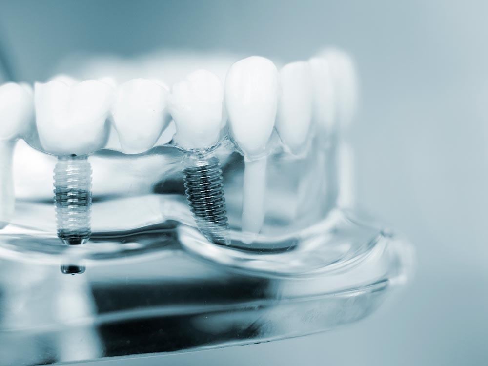 Implantes post-extracción