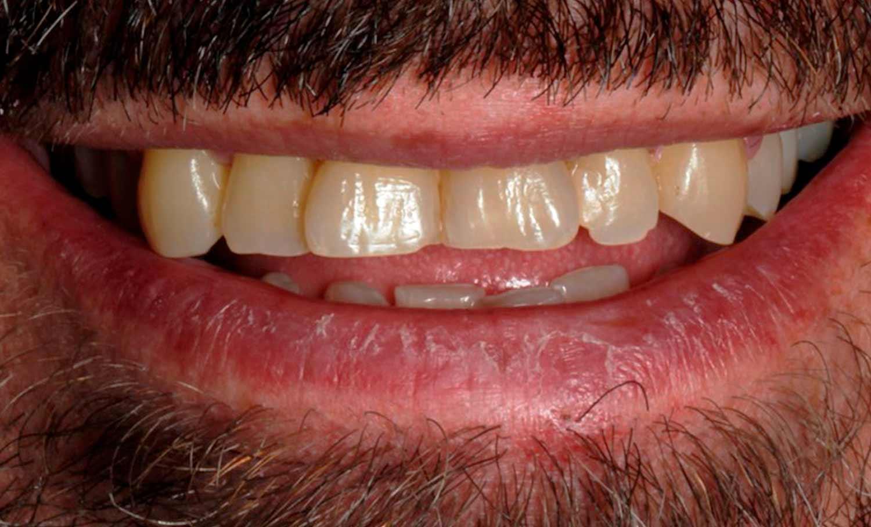 Caso clínico blanqueamiento dental