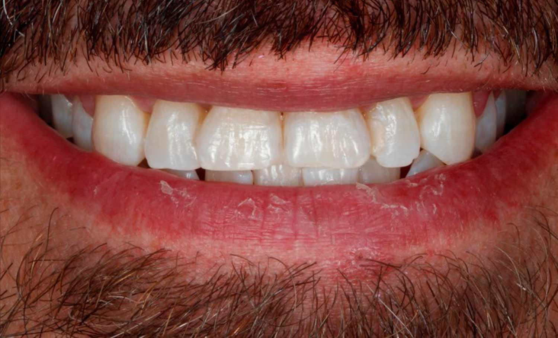 Resultado del blanqueamiento dental